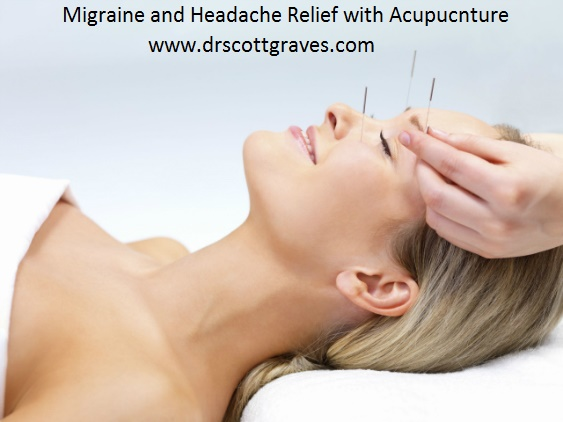 acupuncture migraines and headaches