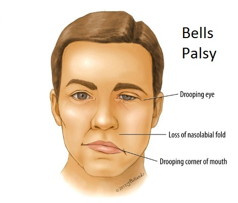 Bells Palsy Acupuncture