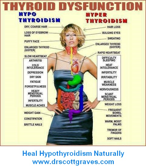 Heal Hypothyroidism Naturally